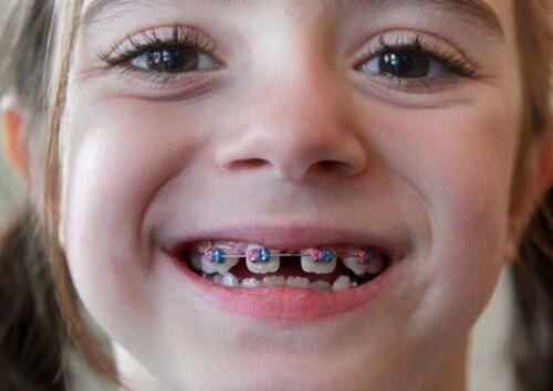 Niềng răng thưa mất bao lâu? 1