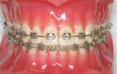 Niềng răng mắc cài kim loại giá bao nhiêu tiền ?