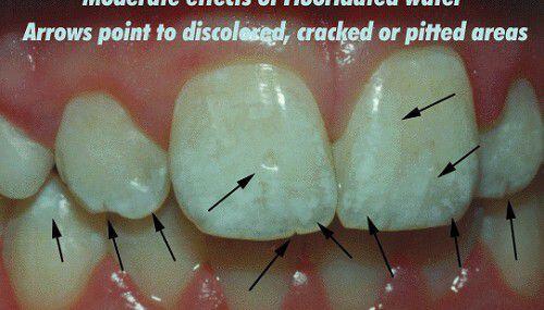 Nhìn màu sắc răng đoán sức khỏe răng miệng