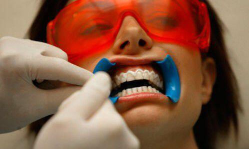 Phương pháp tẩy trắng răng an toàn nào tốt nhất?
