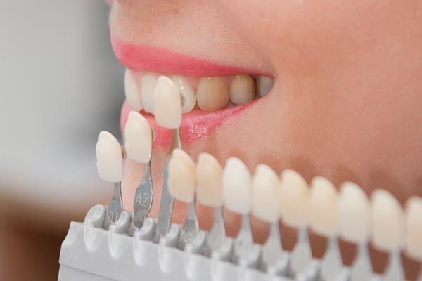 Bọc răng sứ như thế nào?