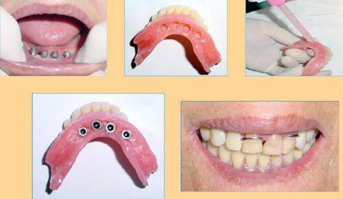 Quy trình cấy ghép mini- Implant