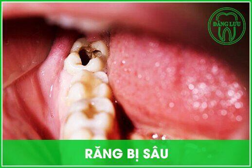 quy trình chữa răng sâu