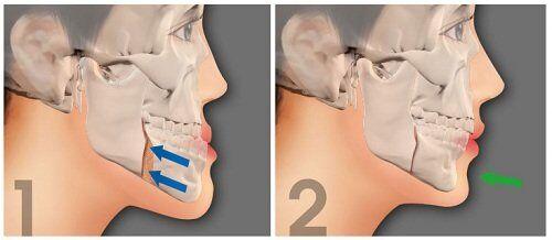 Quy trình phẫu thuật hàm móm như thế nào?