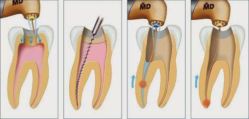 răng bị viêm tủy chảy dịch màu trắng có nguy hiểm