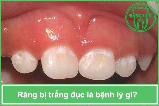 Răng xuất hiện đốm trắng đục là bệnh gì ?