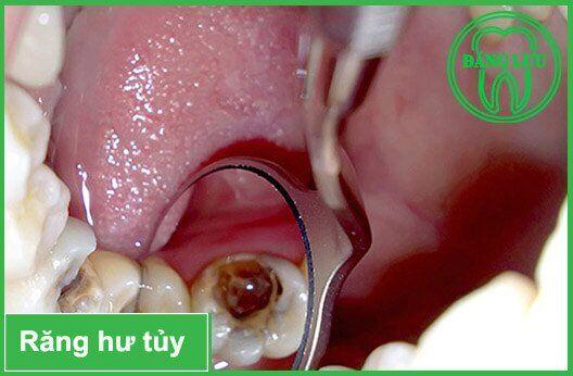 Tại sao cần phải lấy tủy răng ?
