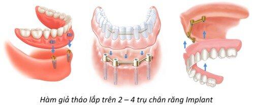 Những trường hợp được cấy implant