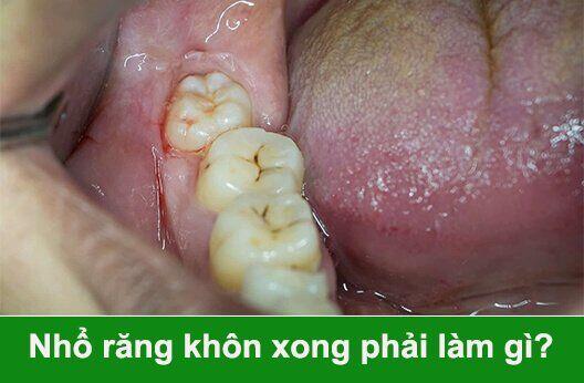 sau khi nhổ răng khôn xong phải làm gì