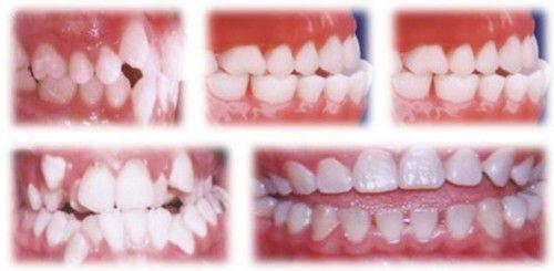 Răng mọc lệch lạc có niềng được không ?