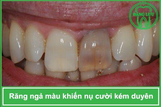 bọc sứ cho răng ngả vàng