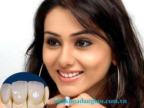Bọc răng sứ cần đảm bảo được những tiêu chí gì ?