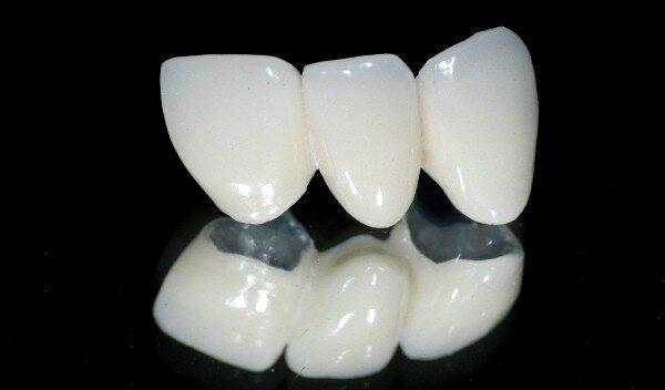 Dịch vụ làm răng sứ cao cấp uy tín