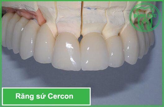 Nên bọc răng sứ Cercon ở đâu ?