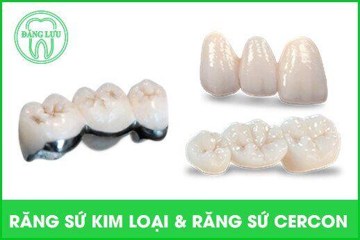 Răng sứ cercon có tốt không ?