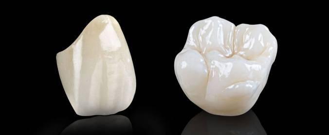 Răng sứ Cercon HT có bị xỉn màu không?
