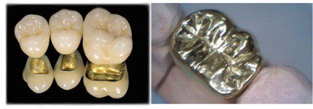 Bọc răng sứ kim loại giá bao nhiêu tiền ?