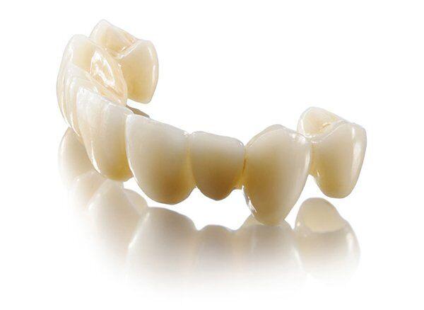 Răng sứ Lava Plus là gì?