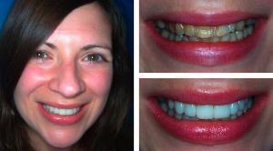 Răng sứ veneer giá bao nhiêu