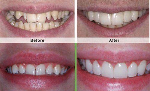 Bọc răng sứ cho trường hợp răng mòn mặt nhai
