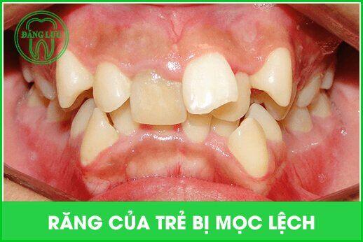 răng vĩnh viễn mọc lộn xộn