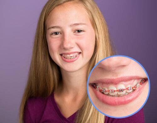 Sau niềng răng màu sắc răng có cải thiện không?