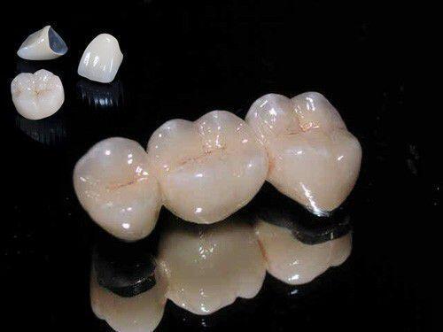 Tại sao răng sứ kim loại bị đen viền lợi?