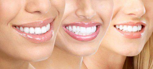 Quy trình tẩy trắng răng bằng Lazer