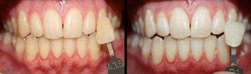 Tẩy trắng răng bằng Laser bao nhiêu tiền?