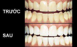 Tây trắng răng cho răng trắng sáng