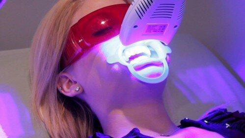 Những ưu điểm vượt bậc của laser whitening