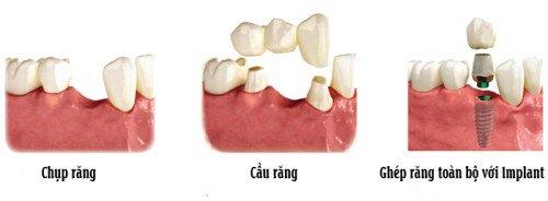 Thay răng giả như thế nào cho đảm bảo ?