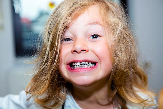 thời điểm niềng răng cho trẻ