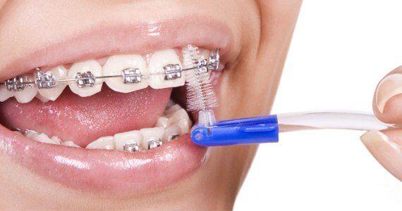 Một số lưu ý khi niềng răng thẩm mỹ