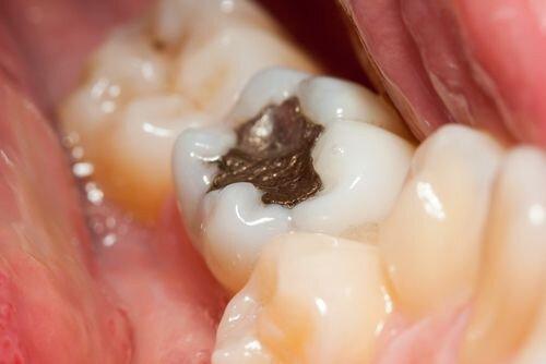 Tìm hiểu vật liệu trám răng truyền thống