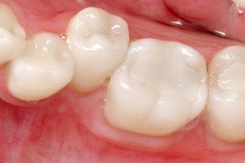 Hàn trám răng và các vật liệu hàn răng