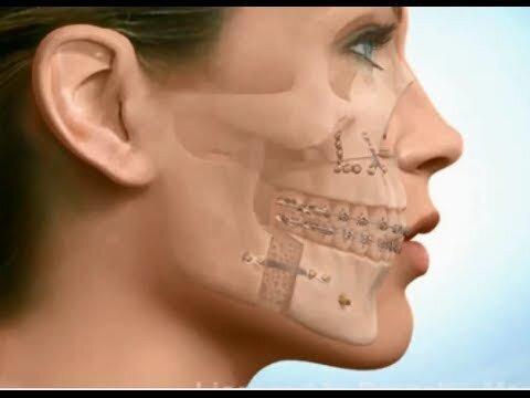 Tiêu chí điều trị hô răng hiệu quả cần đảm bảo