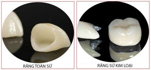 Ưu điểm răng toàn sứ so với răng sứ kim loại
