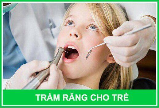 trám răng thẩm mỹ cho trẻ