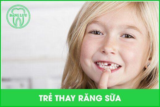 Những lưu ý đặc biệt khi trẻ thay răng sữa