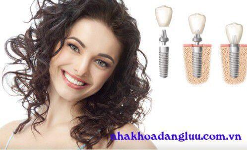 Trồng răng Implant có lợi ích gì ?
