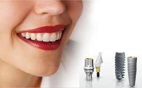 Trồng răng Implant mất bao lâu ?