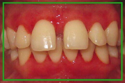 Bảng giá chi phí cấy ghép Implant