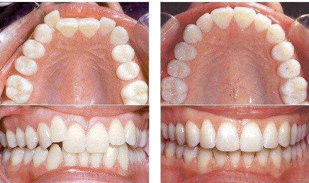 Tạo khoảng trống niềng răng là gì ?