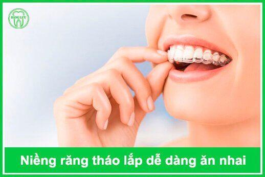 ưu điểm nổi bật của niềng răng tháo lắp