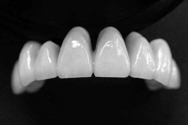 Ưu điểm vượt trội của răng sứ Cercon HT là gì?
