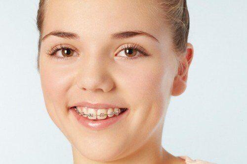 Vì sao khi niềng răng phải tiết chế trong việc ăn uống?