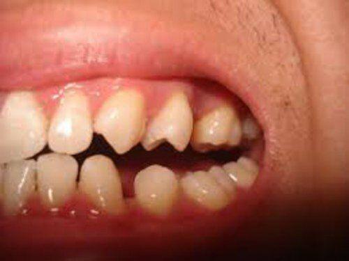 Điều trị răng thưa 1 lần đạt hiệu quả lâu dài