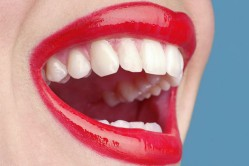 Làm đẹp cho răng bằng cách bọc răng sứ