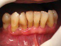 Xỉa răng ảnh hưởng thế nào tới sức khỏe răng miệng